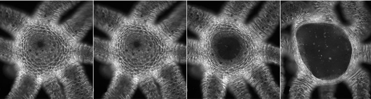 A series of 4 greyscale images showing a Hydra's mouth increasingly open.