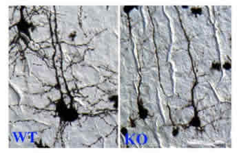 Microscopic images of neurons from normal mice (left) and from mice lacking CREST gene (right)