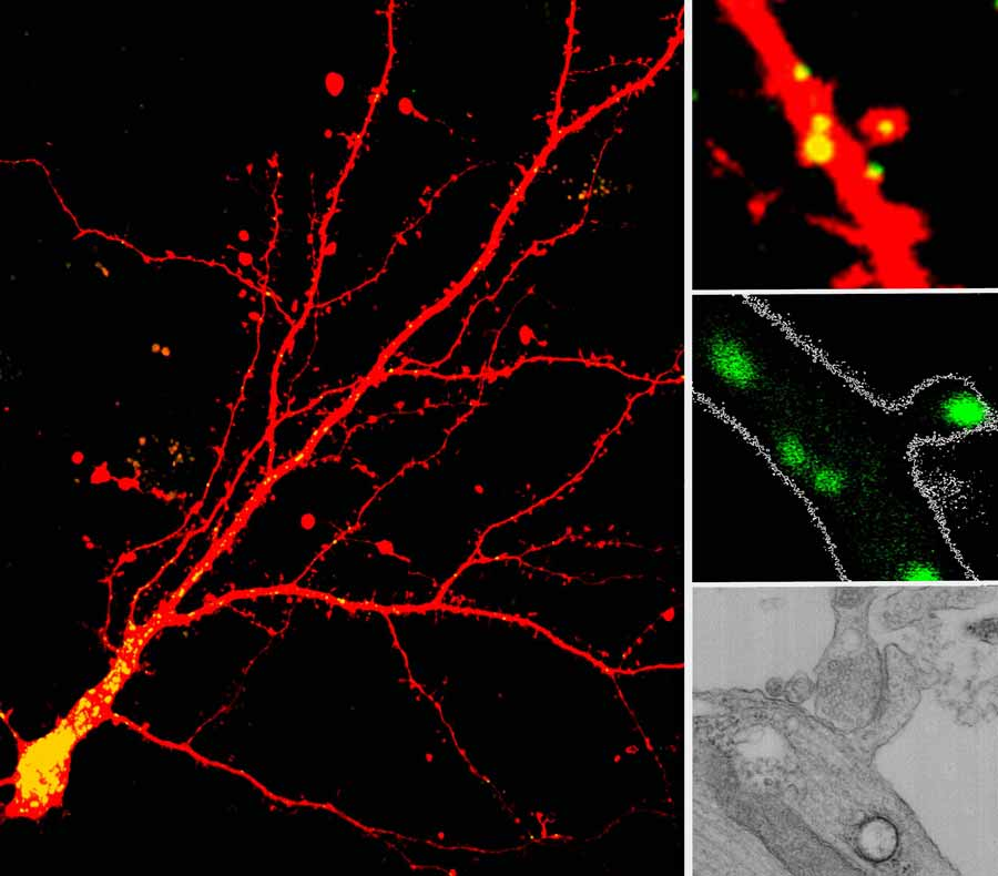 a series of microscopic images of cell dendrites with lysosomes visibly marked