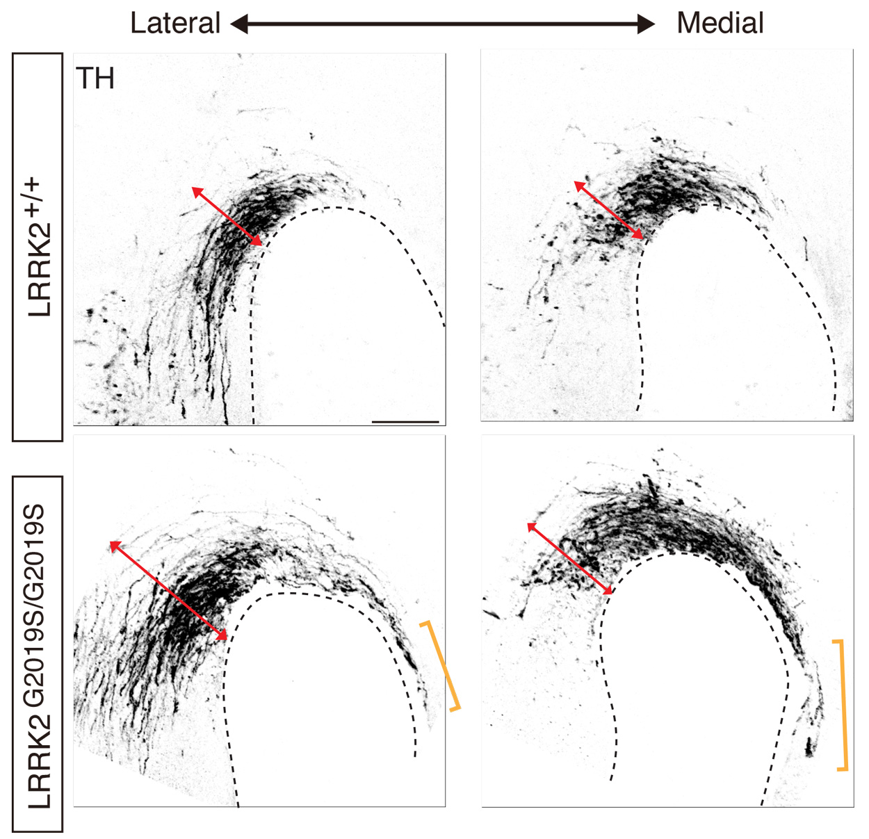 A series of neuronal images show abnormal development of midbrain dopaminergic axons.